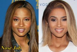 Ciara Plastic Surgery Before and After Nose Job