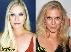 Emily Procter Plastic Surgery Before and After