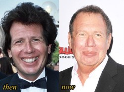 Garry Shandling Plastic surgery Before and After