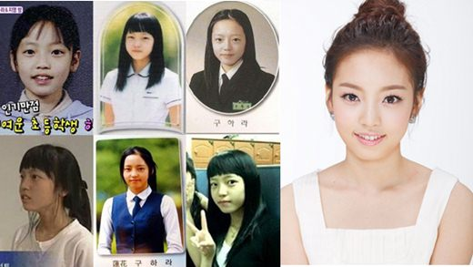 Goo Hara Plastic Surgery Before After