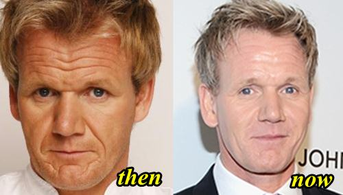 Gordon Ramsay Plastic Surgery