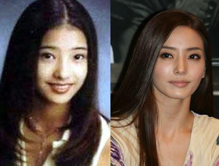 Han Chae Young Plastic Surgery