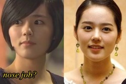 Han ga In Plastic Surgery Nose job