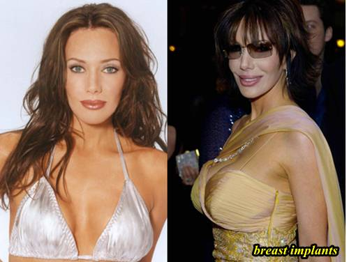 Hunter Tylo Plastic Surgery Breast Implants