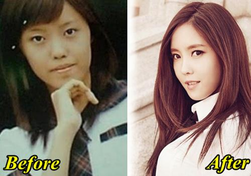 Hyomin T-ARA Plastic Surgery before and After