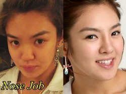 Hyoyeon SNSD Plastic Surgery Nose Job