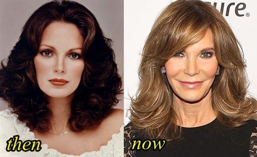Jaclyn Smith Plastic Surgery Before and After