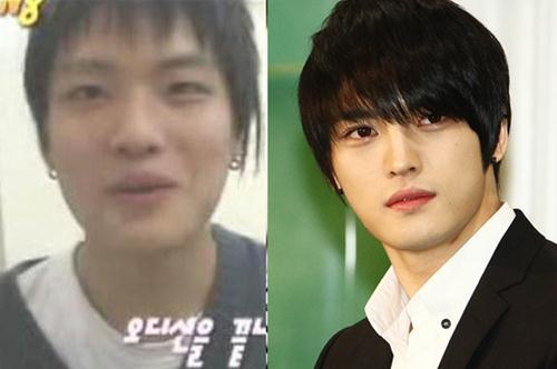 Jaejoong Plastic Surgery