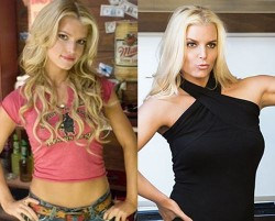 Jessica Simpson Plastic Surgery Breast Implants