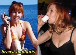 Kari Byron Plastic Surgery Breast Implants