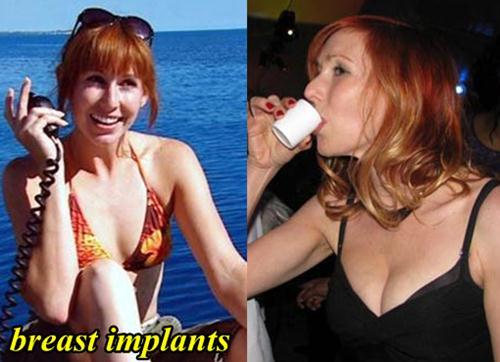 Kari Byron Plastic Surgery Breast Implants