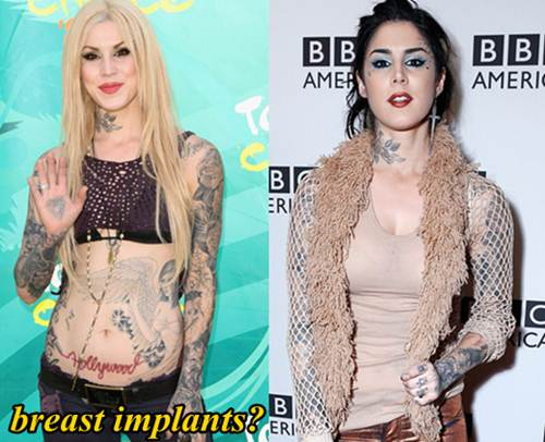 Kat Von D Plastic Surgery Breast Implants
