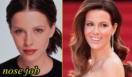 Kate Beckinsale Plastic Surgery Nose Job