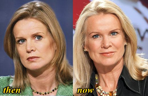 Katty Kay Plastic Surgery Before and After Pictres