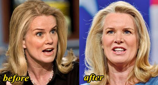 Katty Kay Plastic Surgery Before and After