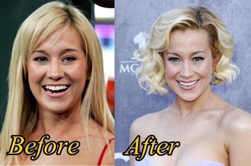 Kellie Pickler Plastic Surgery Before After