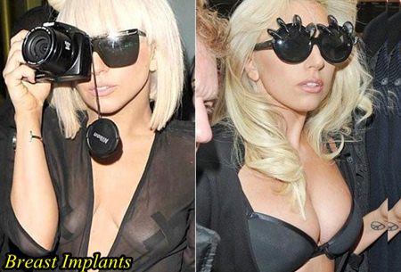 Lady Gaga Plastic surgery Breast Implants