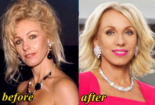 Lea Black Plastic Surgery Before and After