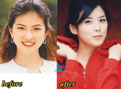 Lee Bo Young Plastic Surgery Before and After