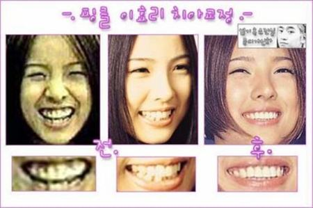 Lee Hyori Plastic Surgery Before and After Picture