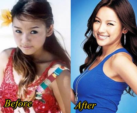 Lee Hyori Plastic Surgery Before and After
