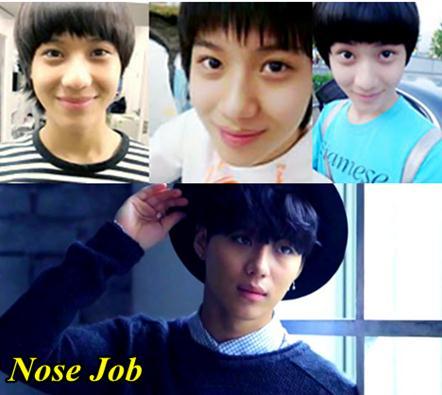 Lee Taemin Shinee Plastic Surgery Nose job