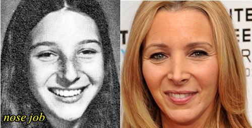 Lisa Kudrow Nose Job