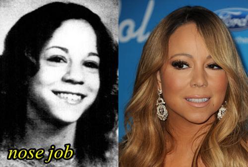 Mariah Carey Plastic Surgery Nose Job
