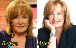 Marilyn Denis Plastic Surgery Before and After Picture
