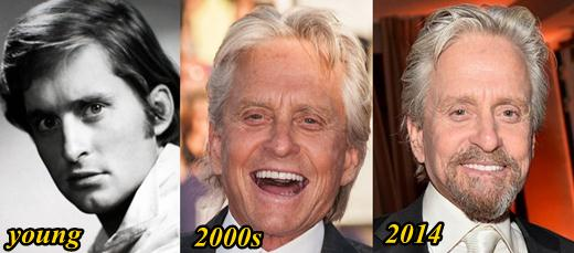 Michael Douglas Plastic Surgery Before and After