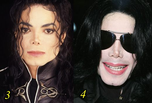 Michael Jackson Plastic Surgery Gone Wrong Before and After