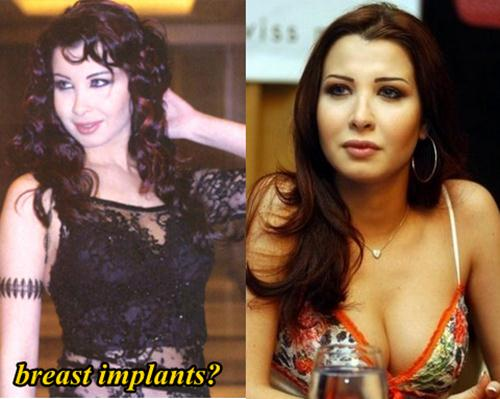 Nancy Ajram Plastic Surgery Breast Implants