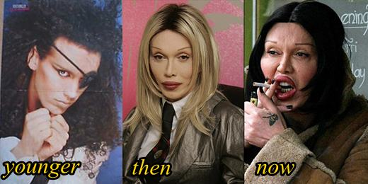 Pete Burns Plastic Gone Wrong Before and After
