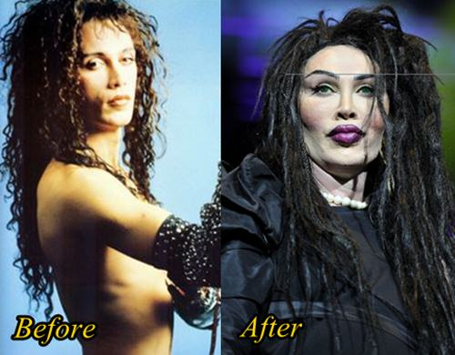Pete Burns Plastic Surgery Gone Wrong