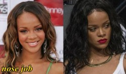 Rihanna Plastic Surgery Before and After Nose job