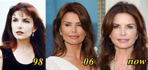 Roma Downey Plastic Surgery Before and After Picture