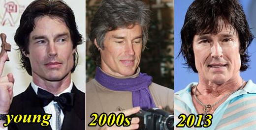 Ronn Moss Plastic Surgery Before and After