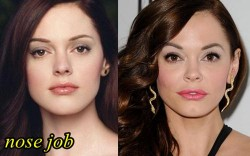 Rose McGowan Plastic Surgery Nose Job