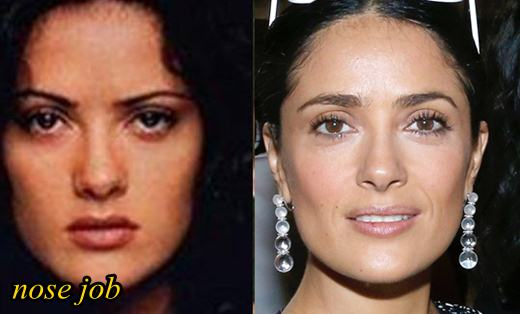 Salma Hayek Plastic Surgery Nose Job