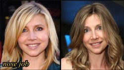 Sarah Chalke Plastic Surgery Nose job