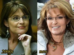 Sarah Palin Plastic surgery Before and After