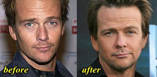 Sean Patrick Flanery Plastic Surgery Before and After
