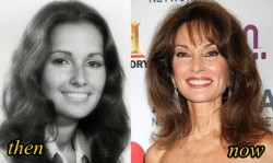 Susan Lucci Plastic Surgery Before and After Picture