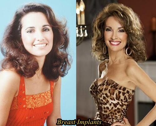 Susan Lucci Plastic surgery Breast implants