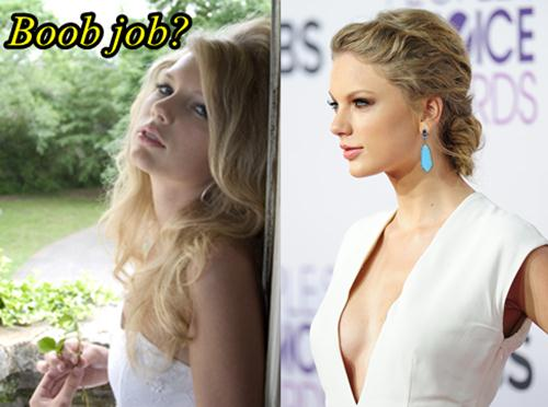 Taylor Swift Plastic Surgery Boob Job
