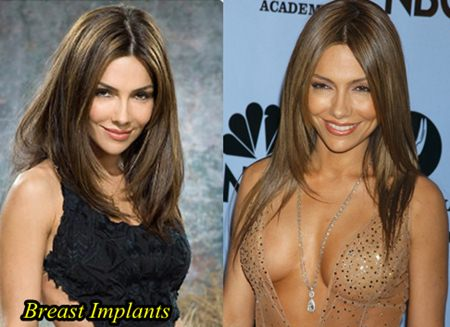 Vanessa Marcil Breast implants
