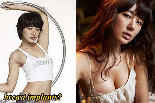 Yoon Eun Hye Plastic Surgery Breast Implants