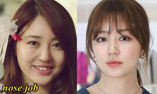 Yoon Eun Hye Plastic Surgery Nose Job