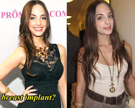 Alexa Ray Joel Plastic Surgery Breast Implants