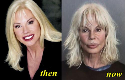 Bree Walker Plastic Surgery Before and After